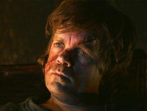 Tyrion-scar.jpg